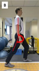 Hip flexor B